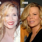 Kim Basinger Show Sign of Plastic Surgery
