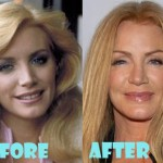 Shannon Tweed Addicted to Plastic Surgery