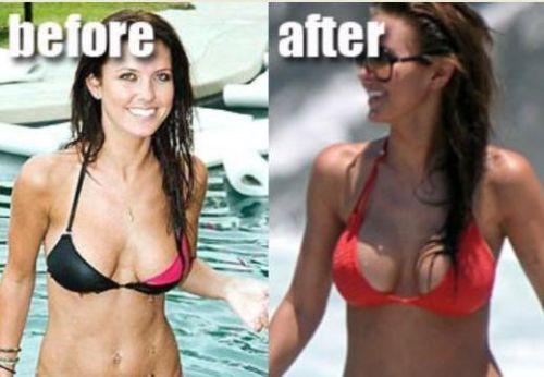 Breast augmentation practice bra