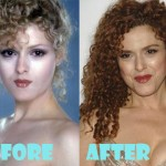Bernadette Peters Stay Young With Plastic Surgery Relief