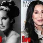 Cher Before and After Plastic Surgery Procedure