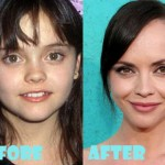 Christina Ricci Before And After Nose Job