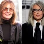 Diane Keaton Rumored Plastic Surgery Done