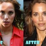 Elizabeth Berkley Saved by Plastic Surgery