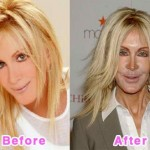 Jennifer Coolidge Keep Youthful with Plastic Surgery