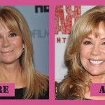 Kathie Lee Gifford Says Okay to Plastic Surgery