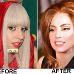 Lady Gaga Against Plastic Surgery Rumor