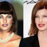 Linda Evangelista Revealed Plastic Surgery for Botox