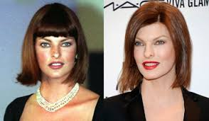 Linda Evangelista Plastic Surgery Botox