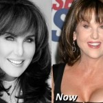 Robin McGraw Plastic Surgery Rumor