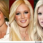 Celebrity of Breast Implants Lists 2
