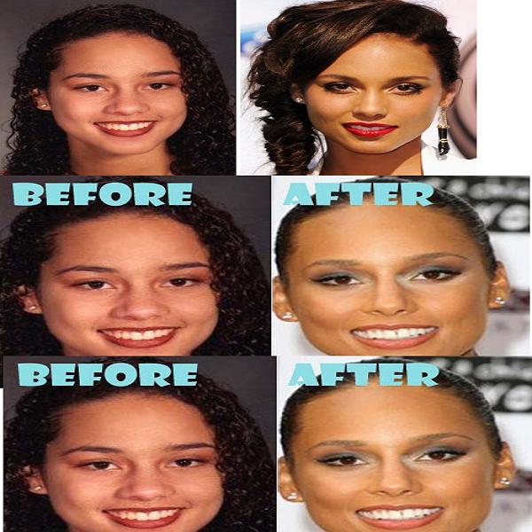 Alicia Keys Nose Job