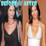 Courteney Cox Breast Implants