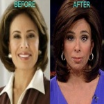 Jeanine Pirro Plastic Surgery Before and After Pictures