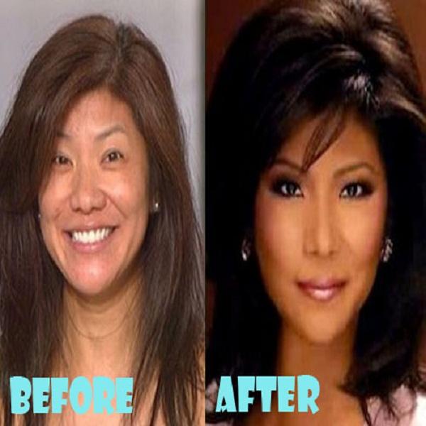 Sandra Bullock Plastic Surgery Before Amp After Celebrity