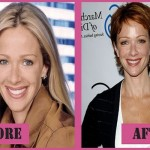 Lauren Holly Measurements & Plastic Surgery