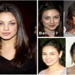 Mila Kunis Plastic Surgery: Checklist of facts & Rumors
