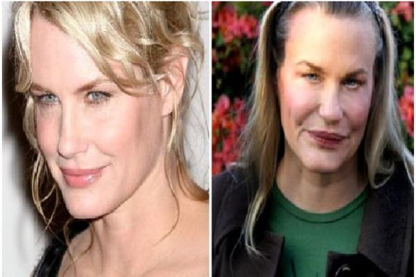 Daryl Hannah plastic surgery disasters