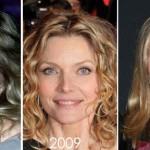 Michelle Pfeiffer Plastic Surgery Admission