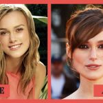 Keira Knightley Plastic Surgery Before & After Photos