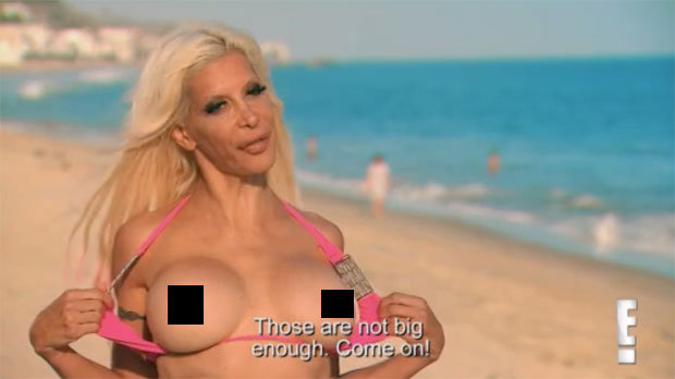 Frenchy on Botched