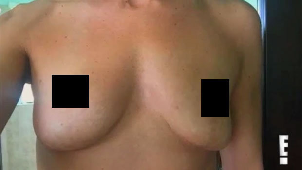Melissa's boobs - Botched