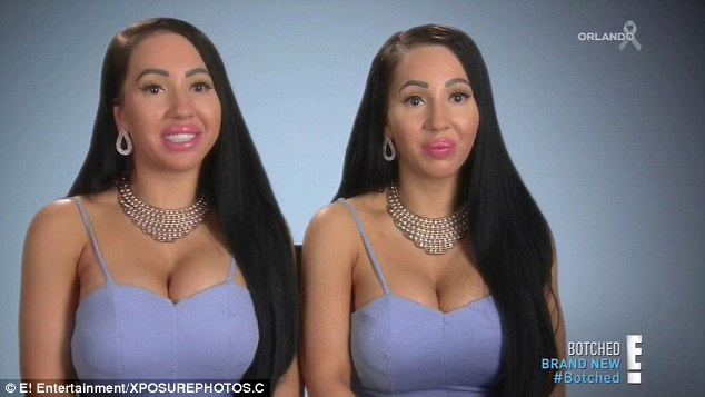 Make us identical! The duo hoped appearing on US plastic surgery show Botched! would give them identical breasts
